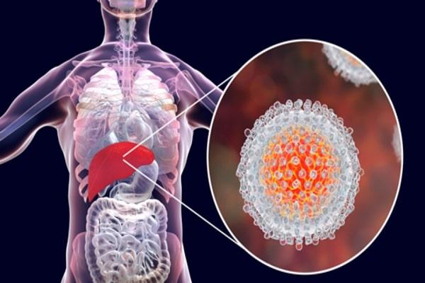 hepatitis-1-min