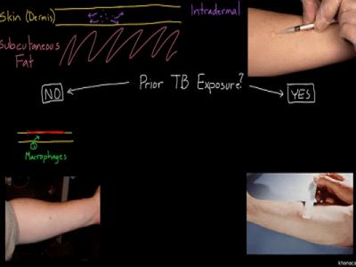 آزمون پوستی توبرکولین Tuberculin Skin Test (TST) (PPD)