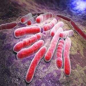 اطلاعیه دوره آنلاین TB