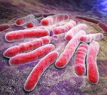توبرکلوز و روشهای تشخیص آزمایشگاهی